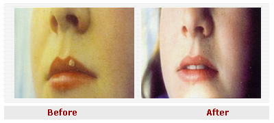 lip_wart_before_after
